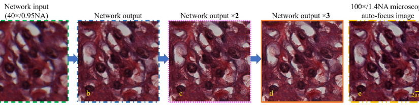 Deep learning microscopy